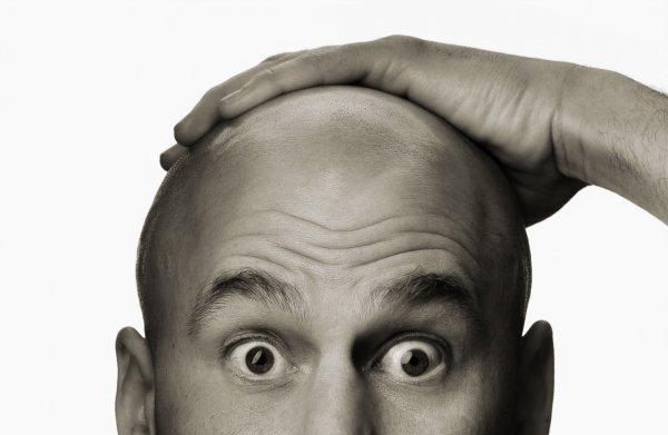 Лысые мужчины более подвержены раку простаты - Специалист