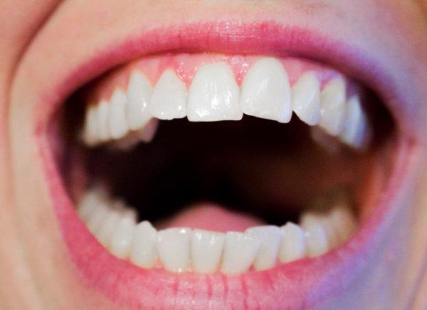 Учёные объяснили, почему раны во рту заживают быстрее